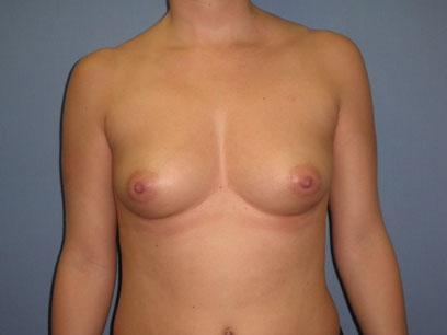 Before and After Breast Augmentation Case #71008