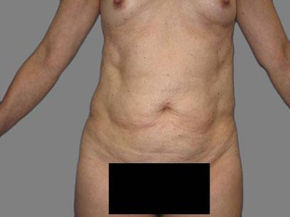 Before and After Abdominoplasty Case #120508