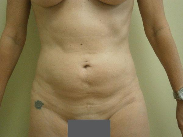 Before and After Liposuction Case #1002199