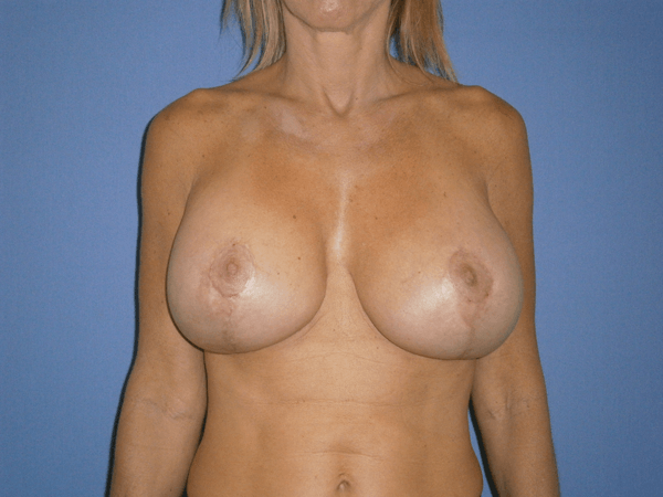 Before and After Breast Lift Case #1000694
