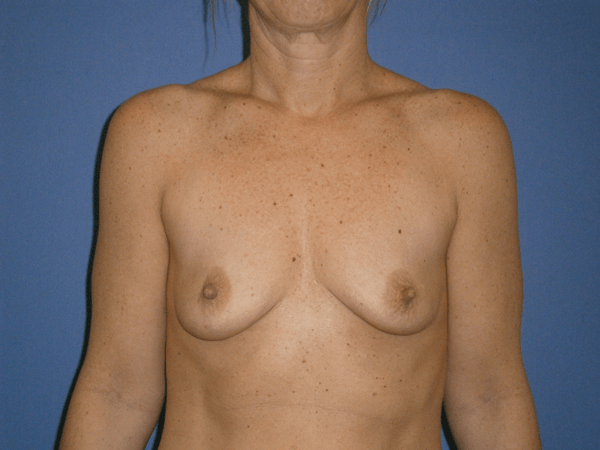 Before and After Breast Augmentation Case #1003173