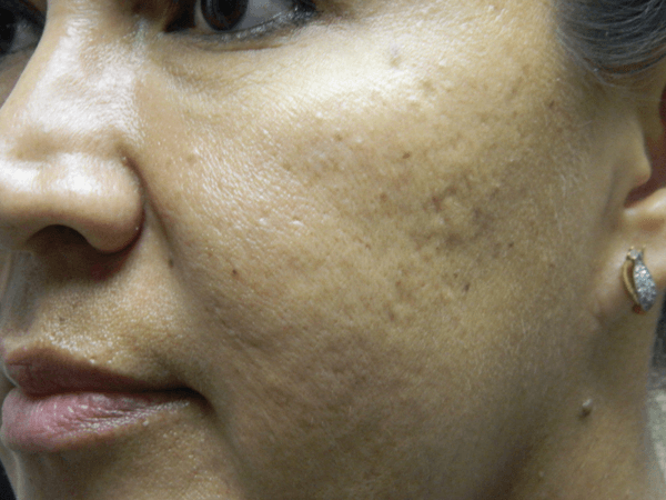 Before and After Microneedling #51522
