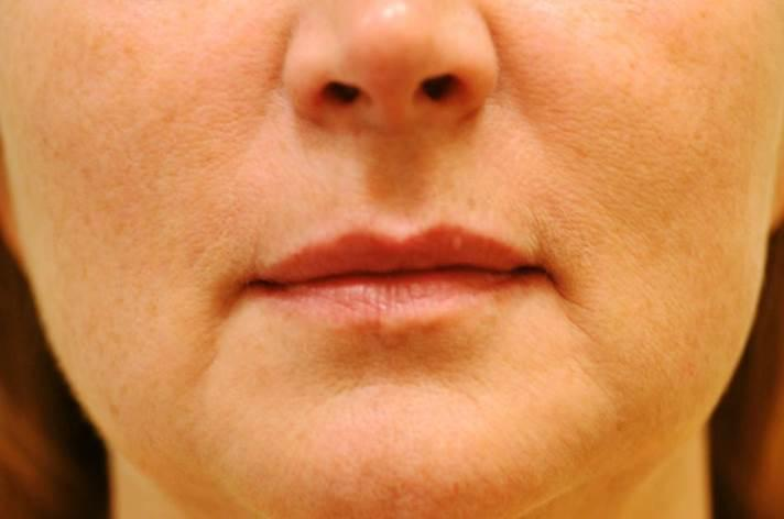 Laser Skin Tightening (Sample Case #2)