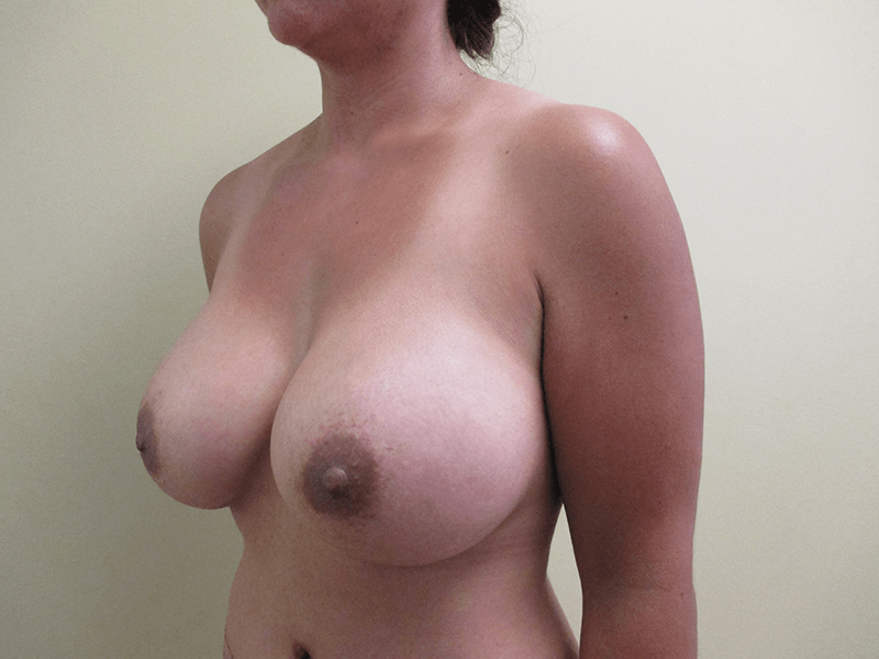 Before and After Breast Augmentation Case #1003749