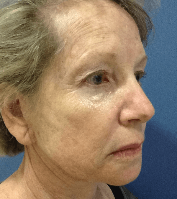 Before and After: Botox & Radiesse #34054