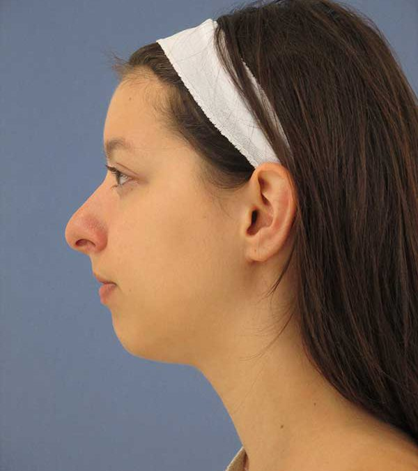 Before and After Rhinoplasty Case #1004079