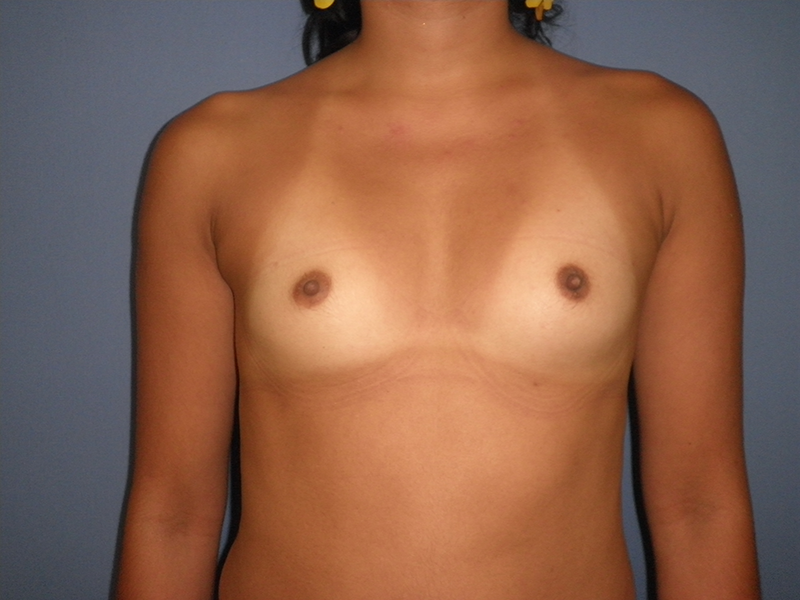 Before and After Breast Augmentation Case #28061