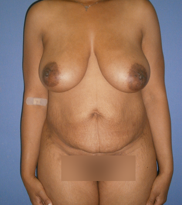 Before and After Abdominoplasty Case #1000516