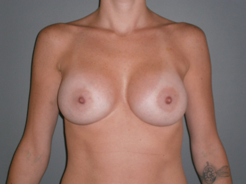 Before and After Breast Augmentation Case #1000938