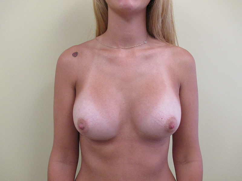 Before and After Breast Augmentation Case #1003098