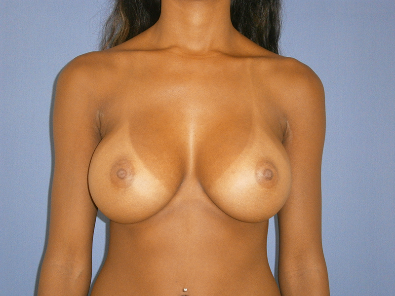 Before and After Breast Augmentation Case #1003004