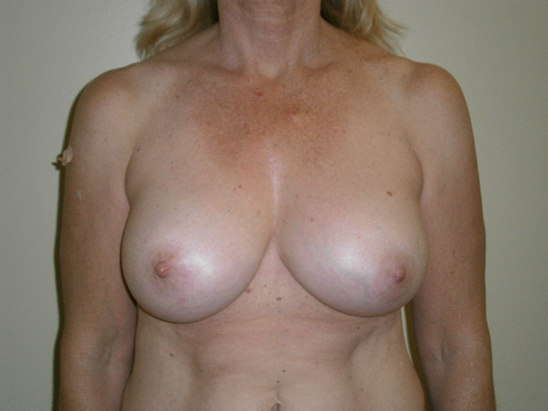 Before and After Breast Augmentation Case #49484