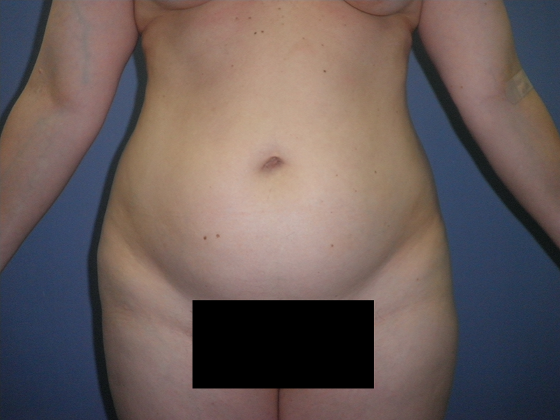 Before and After Abdominoplasty Case #26172