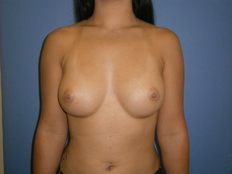 Before and After Breast Augmentation Case #1001562