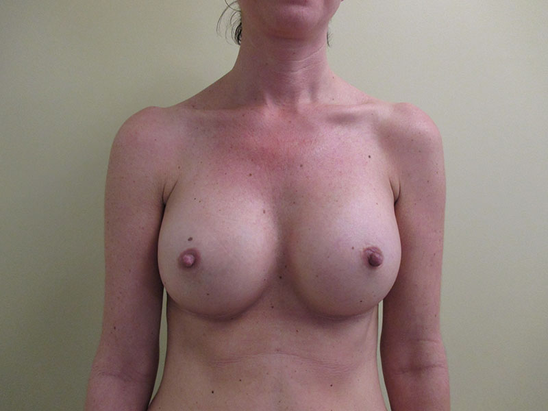 Before and After Breast Augmentation Case #27635