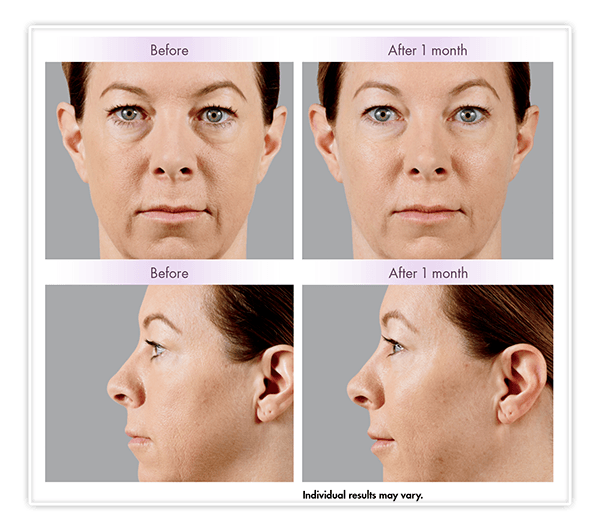 Juvéderm Voluma XC Before and After Example v1