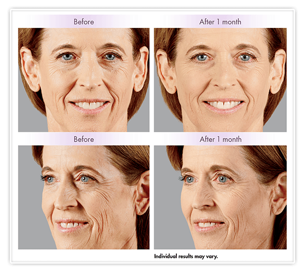 Juvéderm Voluma XC Before and After Example v2