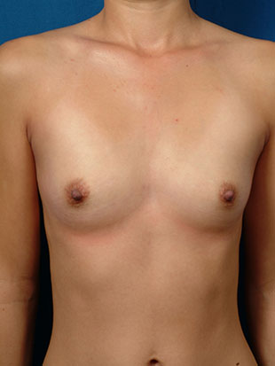 Breast Augmentation Case #872665
