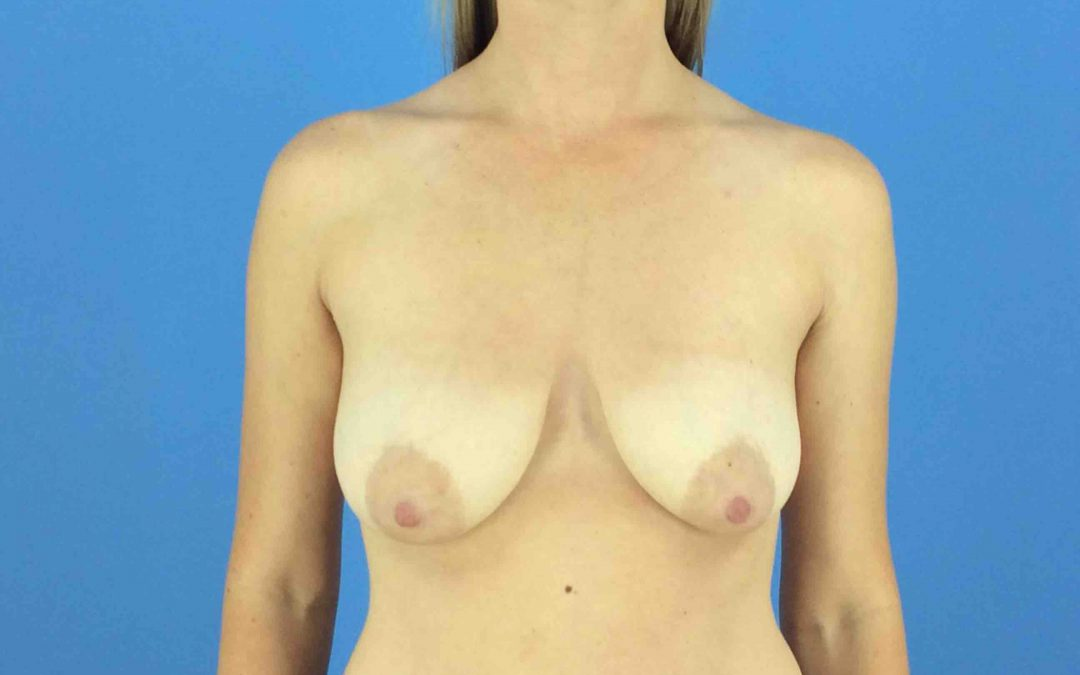 Breast Lift Case #675891