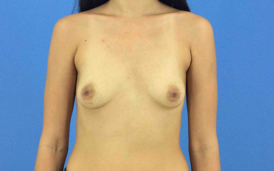 Before and After Breast Augmentation Case #1002258