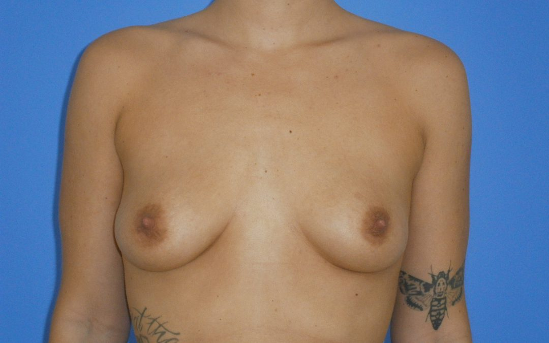 Before and After Breast Augmentation Case #1005133