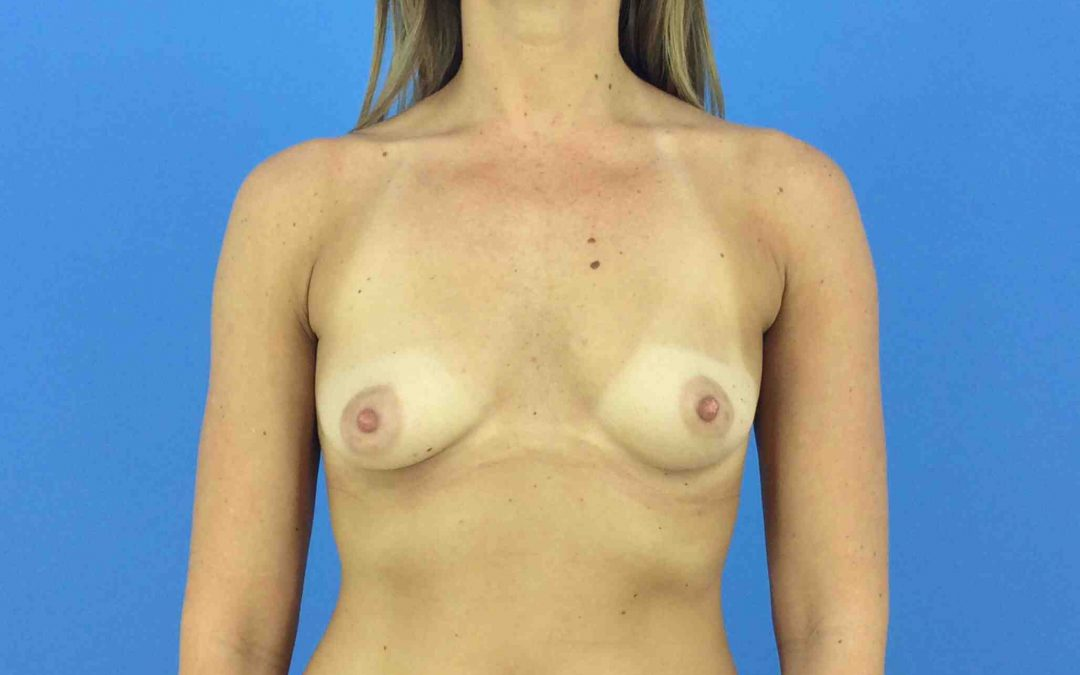 Before and After Breast Augmentation Case #1005430