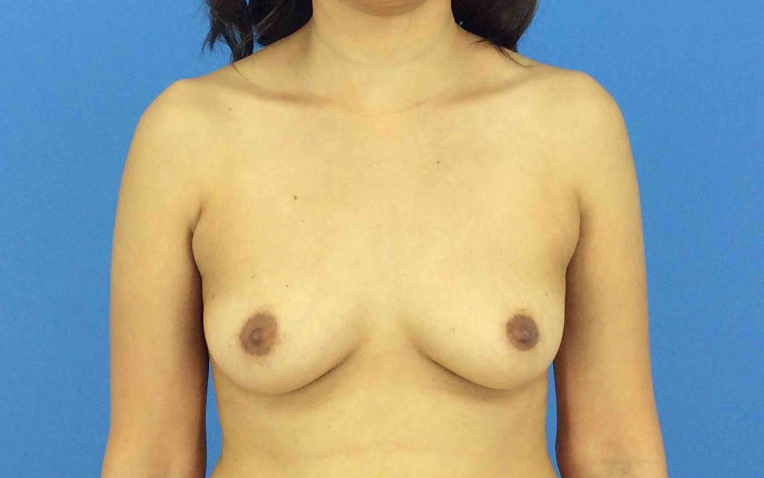 Before and After Breast Augmentation Case #1006009