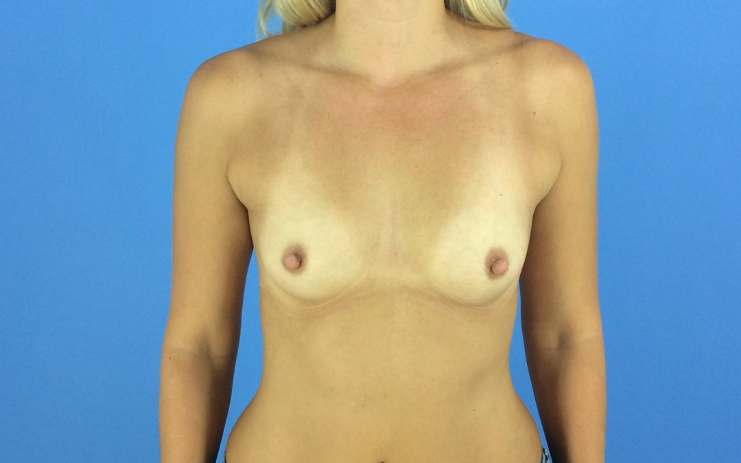 Before and After Breast Augmentation Case #1007997