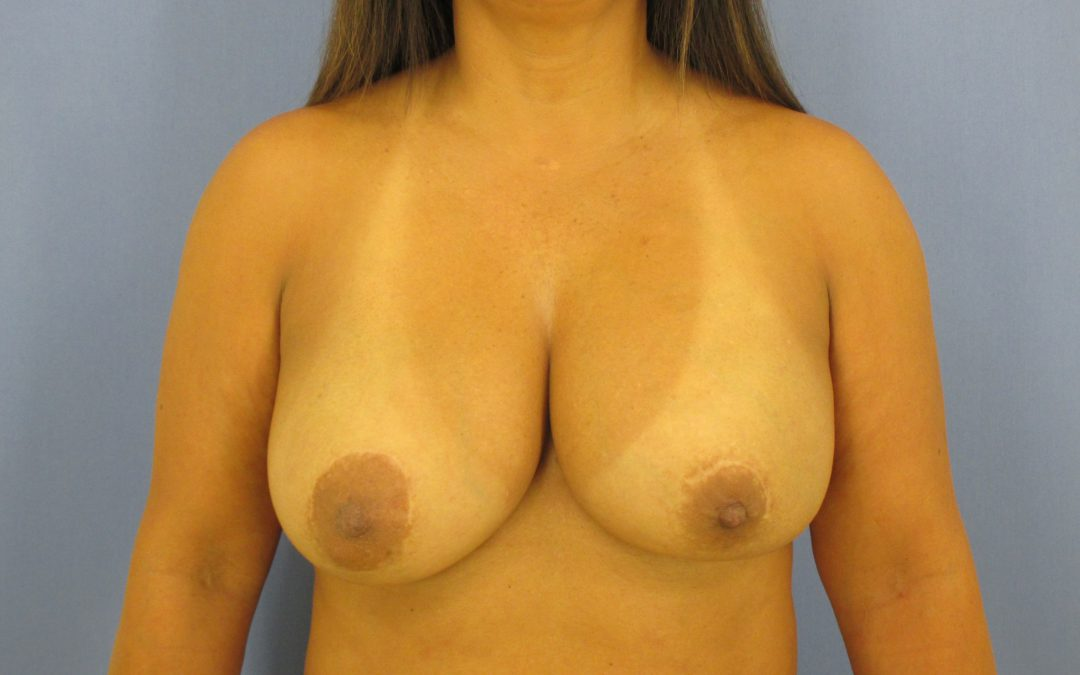 Before and After Breast Augmentation Case #3972