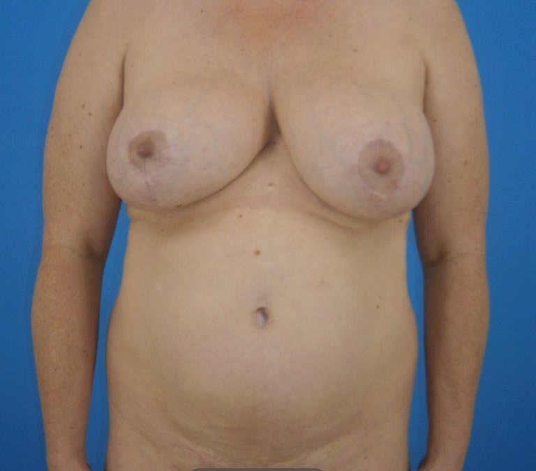 Before and After Liposuction of the Abdomen and Flanks case #9456
