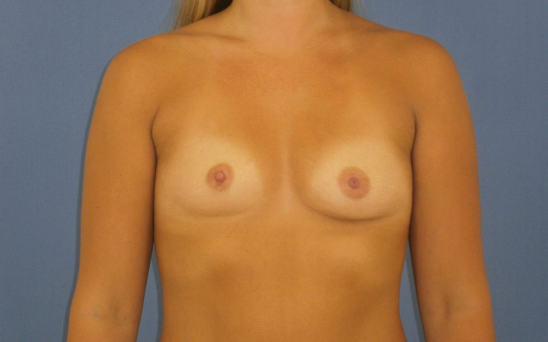 Before and After Breast Augmentation Case #1005001