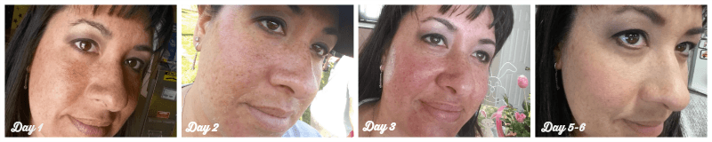 Bringing Back My Youthful Skin With a CosmetiCare Rejevenize Peel