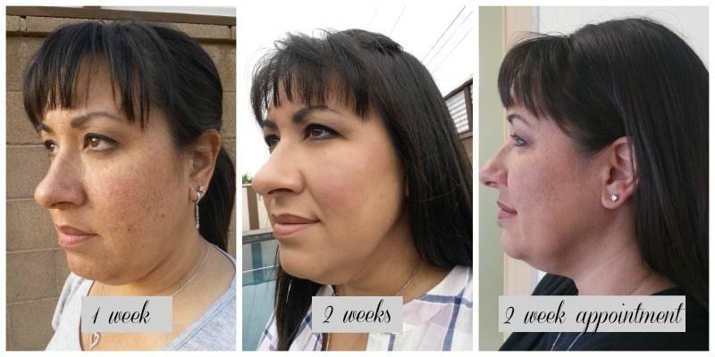 My First Treatment – Kybella