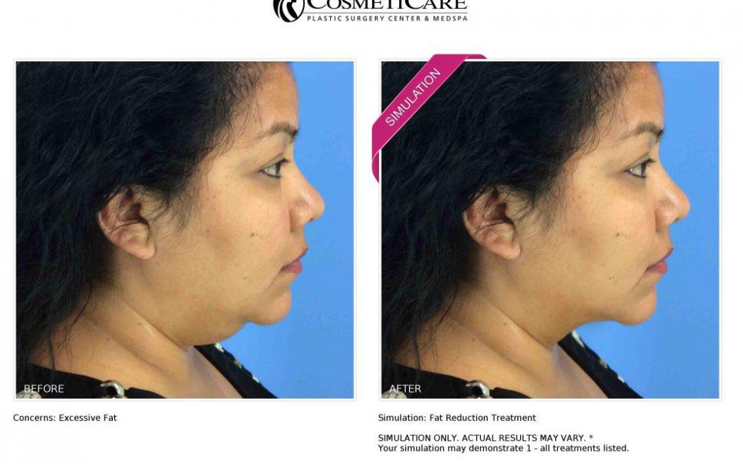 Check out your 'New Look Now' for your Kybella Treatments at CosmetiCare!