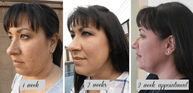 Kybella Results – My Transformation