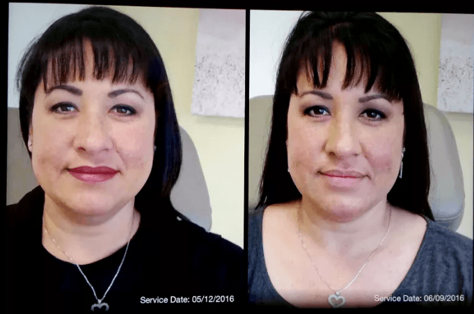 Kybella Results - My Transformation - CosmetiCare