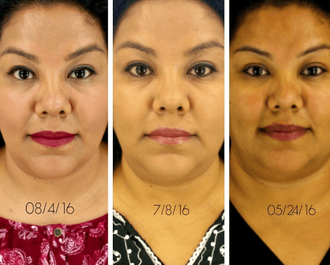 2nd Kybella Treatment Up with Pictures