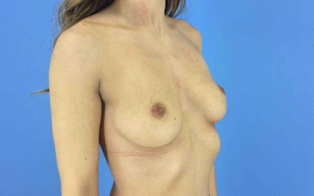 Before and After Breast Augmentation Case #1017782