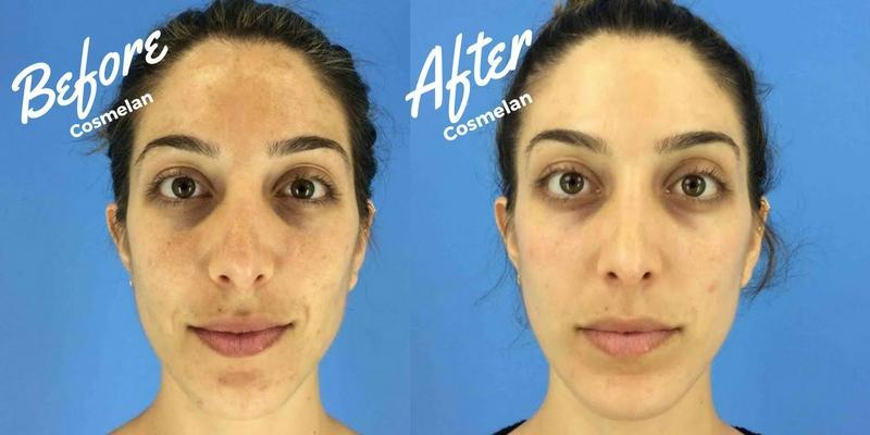 Before and After Cosmelan Peel
