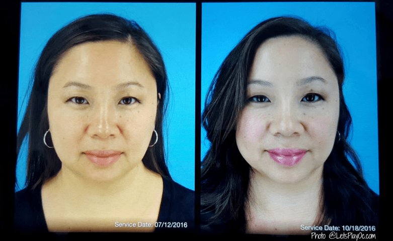 After Two Treatments of Kybella Update #CosmetiCareMoms