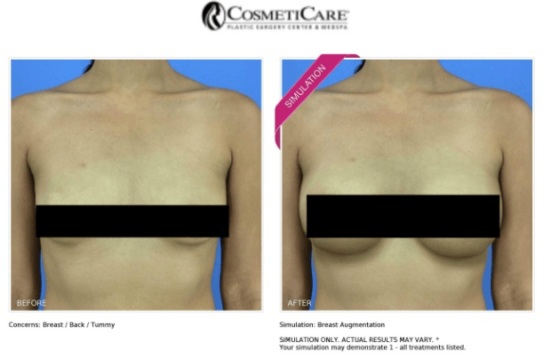 Breast Surgery Before and After Pictures