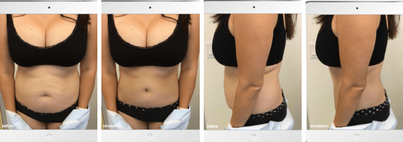 My Body Contouring Abdominoplasty Journey – Part II Scheduling and Pre-Op