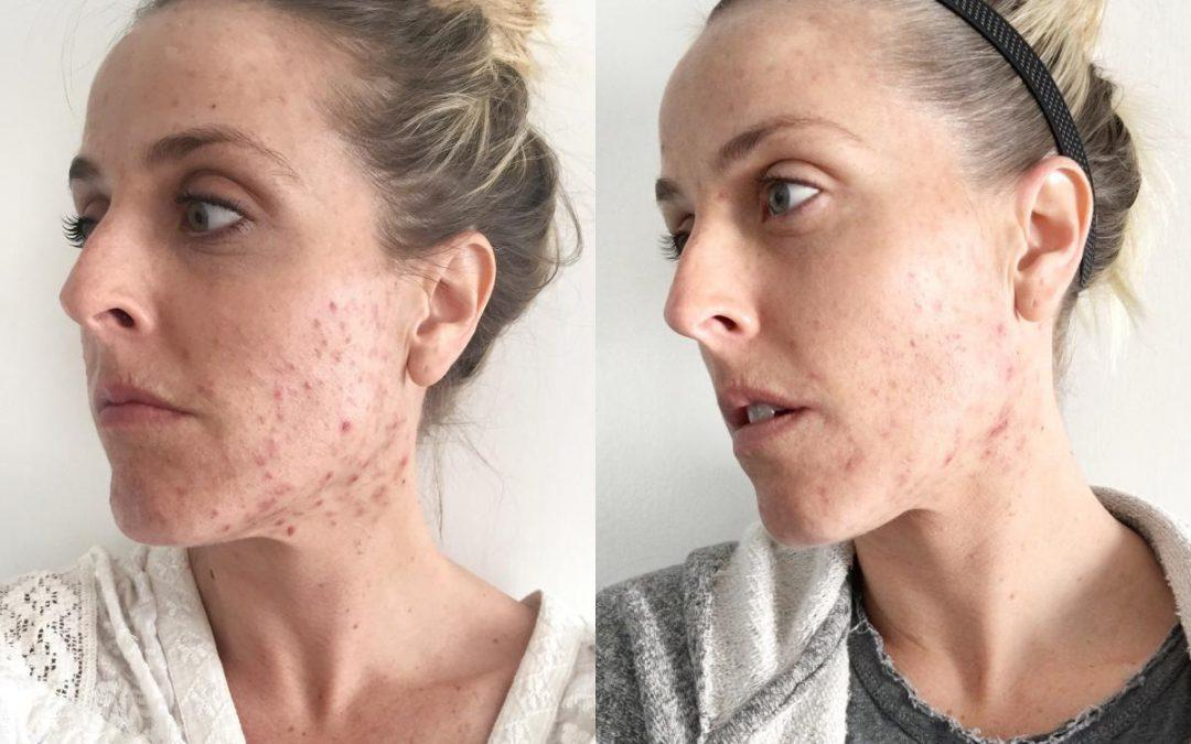 Working on Healing My Acne at CosmetiCare