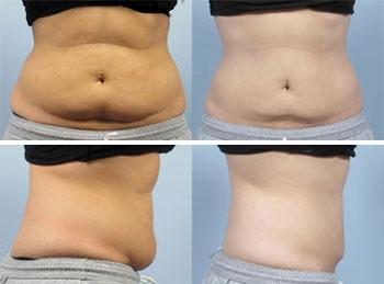 coolsculpting vs liposuction vs tummy tuck