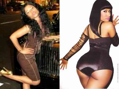nicki minaj butt implants butt injections butt lift