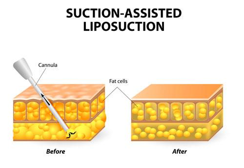 Suction Assited Liposuction