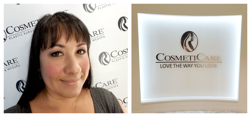 Rhinoplasty – Post Op and Immediate Results