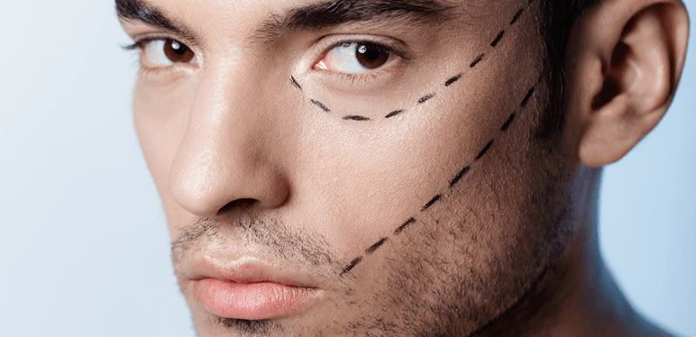 More and More Millennial Men Opting for Nose Surgery