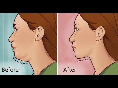 How to Get Rid of Neck Fat: Kybella vs truSculpt vs Liposuction