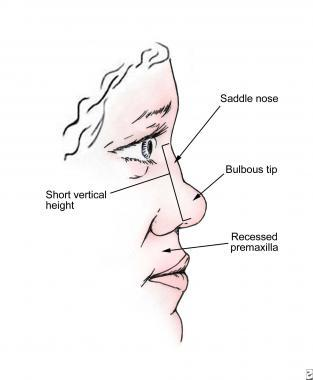 saddle nose deformity